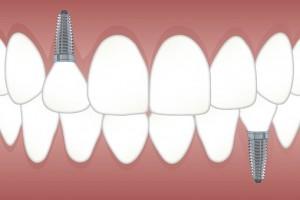 implant detnaire moins cher